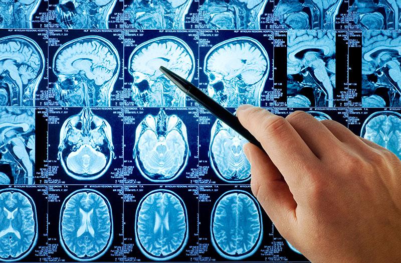 прием невролога спб